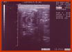Ultrasound 1 of this pediatric radiology teaching file