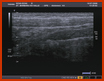 Ultrasound 2 of this pediatric radiology teaching file